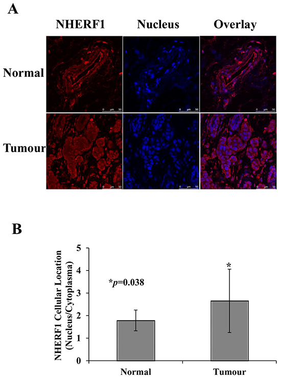 Subcellular distribution of NHERF1 in normal and cancerous human breast tissues.