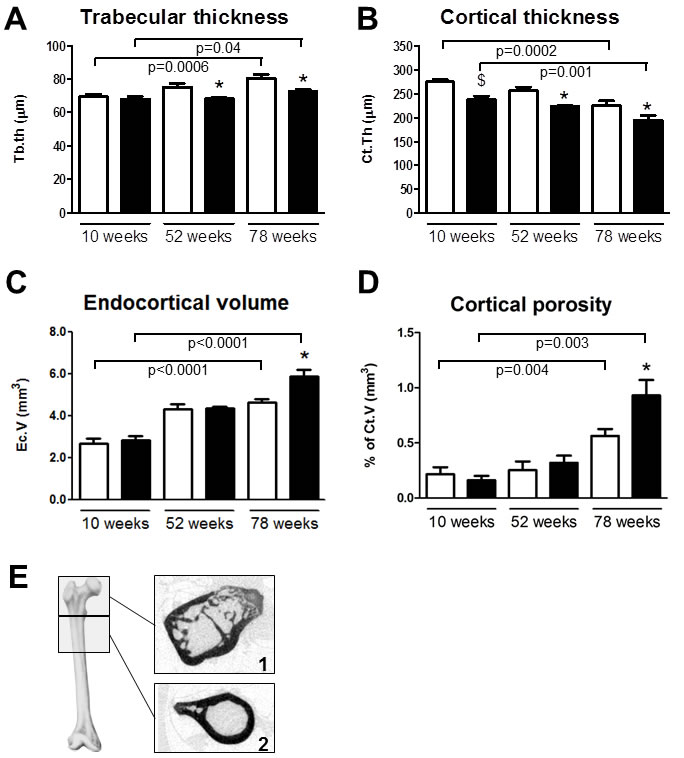 Trpv5 deficiency leads to reduced bone thickness.