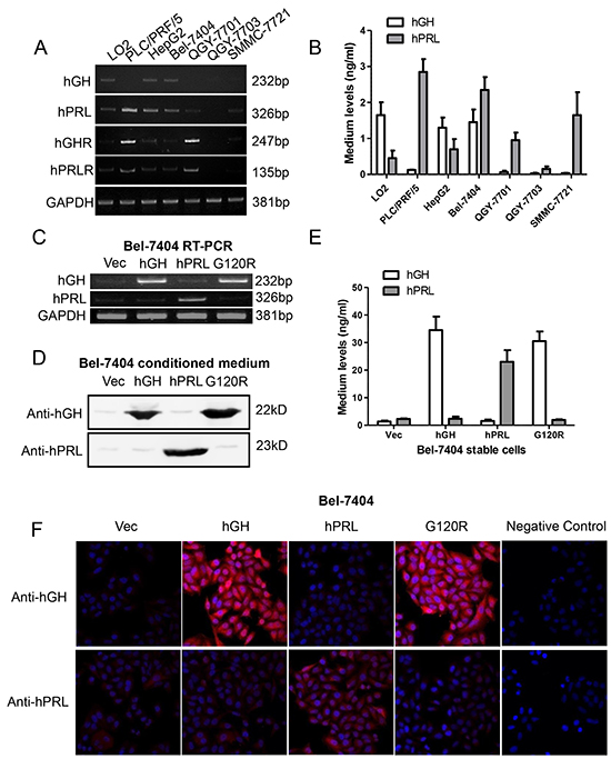 Forced expression of hGH, hPRL and G120R in Bel-7404 cells.