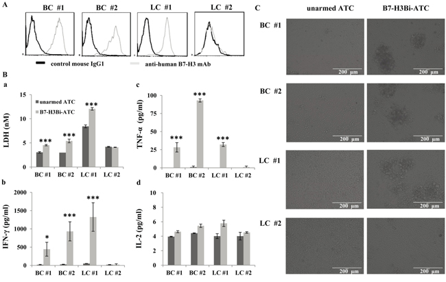 The cytotoxicity effects of B7-H3Bi-armed ATC against freshly isolated tumor cell from patients.