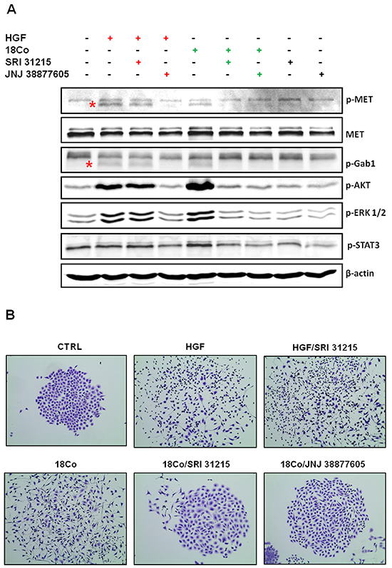 SRI 31215 inhibits the crosstalk between tumor cells and fibroblasts.