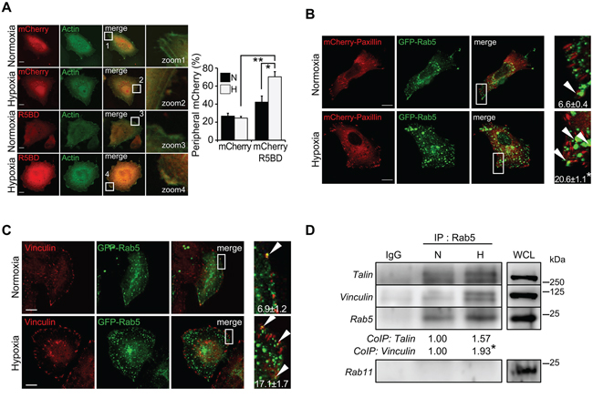 Hypoxia increases the association of Rab5 with focal adhesion proteins.