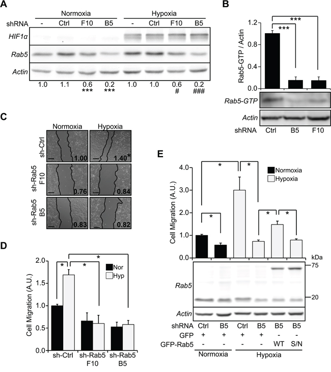 Rab5 activation is required for hypoxia-induced cell migration.