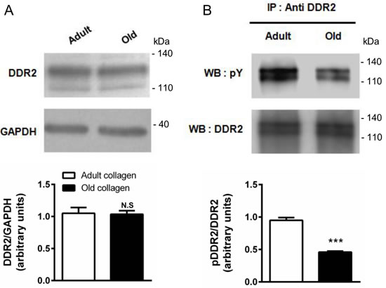 Effect of collagen aging on DDR2 expression and activation.