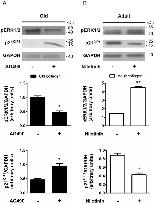 Effect of DDR2 and JAK2 inhibition on ERK1/2 activation and p21