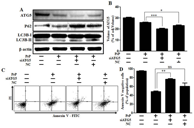 Inhibition of ATG5 gene expression alleviated PrP (106-126)-induced cytotoxicity.