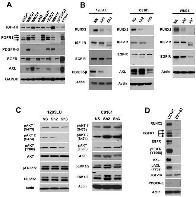 RUNX2 knock down results in reduced expression of RTKs.