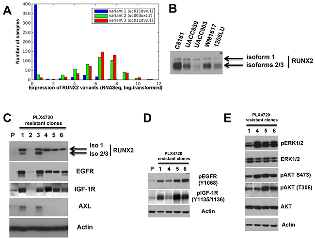 Increased expression of RUNX2 isoforms and RTKs in melanoma cells resistant to BRAF V600E inhibition.