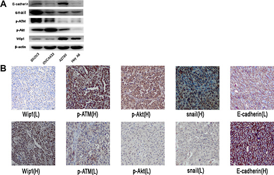 Correlation of Wip1with p-ATM, p-AKT, snail and E-cadherin in ovarian cancer tissues.