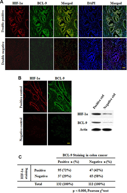 HIF-1α expression is associated with BCL-9 expression in human colorectal cancer specimens.