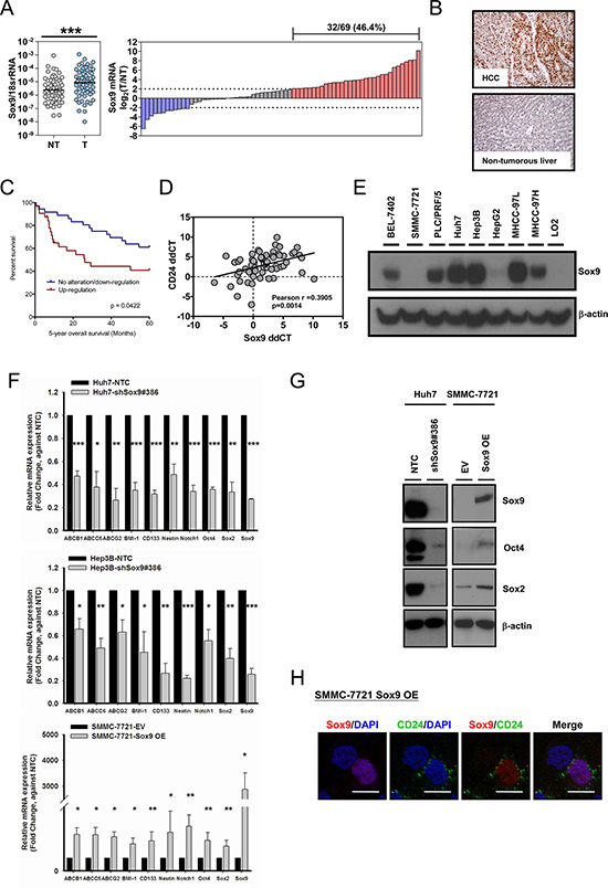 Sox9 is upregulated in human HCC and Sox9 expression is associated with expression of stemness markers in vitro.