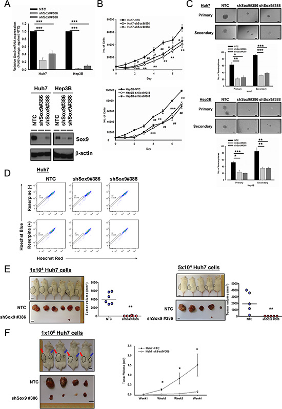 Silencing of Sox9 inhibits cell proliferation, tumorsphere formation and in vivo tumorigenicity in HCC.