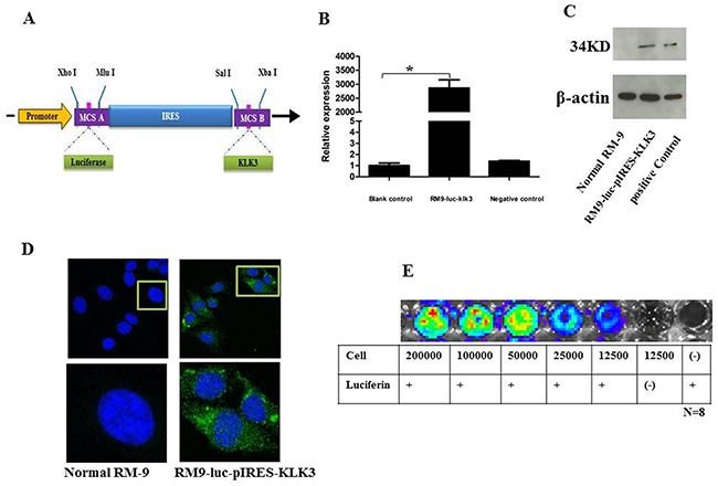 Construction and verification of the new recombinant cell line RM9-luc-pIRES-KLK3