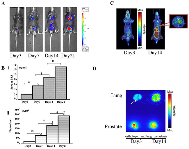 Preclinical orthotopic and lung metastasis mouse models using RM9-Luc-pIRES-KLK3 cells (n = 7)