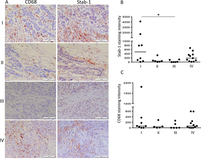 Stabilin-1 expression in human breast cancer.