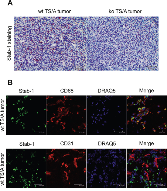 Stabilin-1 expression in TS/A mouse mammary adenocarcinoma tumor.
