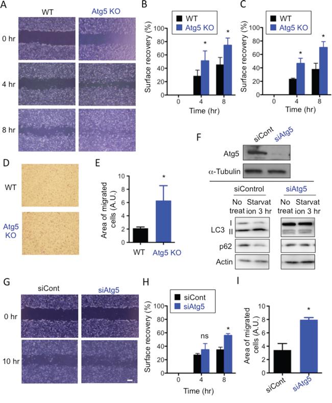 Lack of Atg5 enhances cell migration.