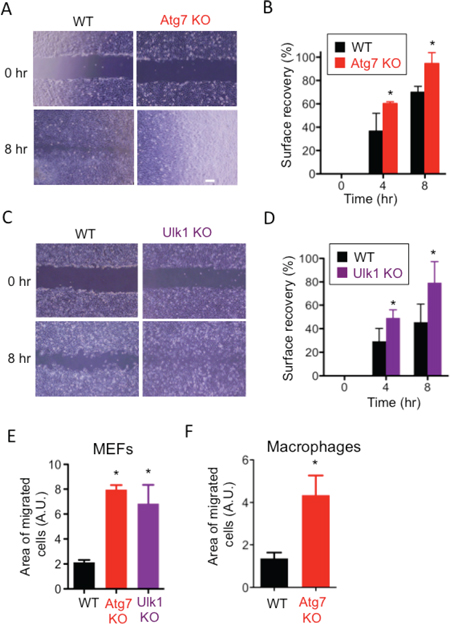 Involvement of Atg7 and Ulk1 in cell migration.