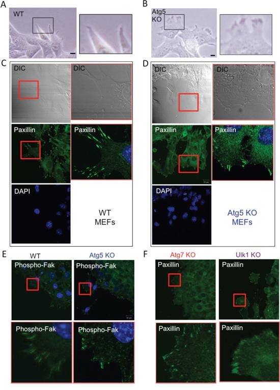 Loss of Atg5 facilitates amoeba-like migration.