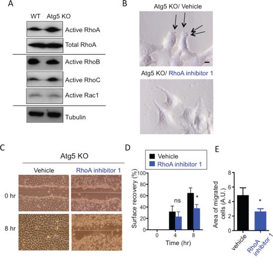 Involvement of RhoA in the amoeba-like migration of Atg5 KO MEFs.