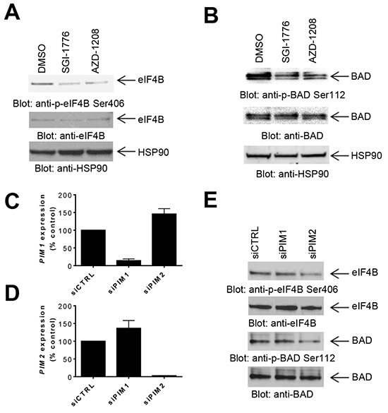 Effects of PIM kinase inhibition on phosphorylation of eIF4B and BAD in GBM cells.