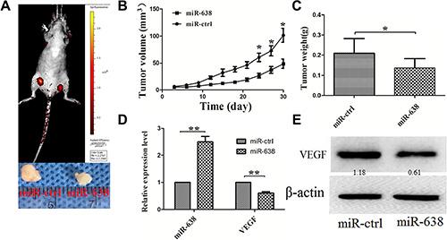 miR-638 inhibits HCC progression in vivo.