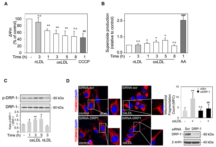 Oxidized LDL induced mitochondrial depolarization, dysfunction and Drp-1 dependent fission in human VSMC.