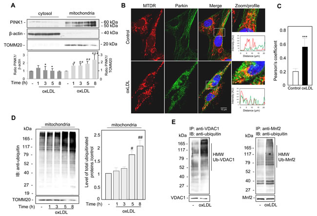 Oxidized LDL induced the recruitment of PINK1 and Parkin to the damaged mitochondria and increased mitochondrial ubiquitinylated proteins in human VSMC.