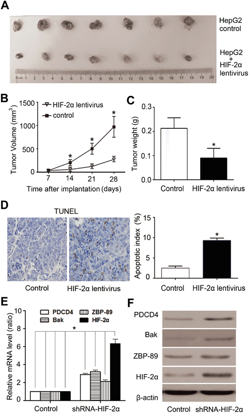 Over-expression of HIF-2α induced HCC growth arrest and high apoptosis rate in HepG2-cell xenografts in nude mice.