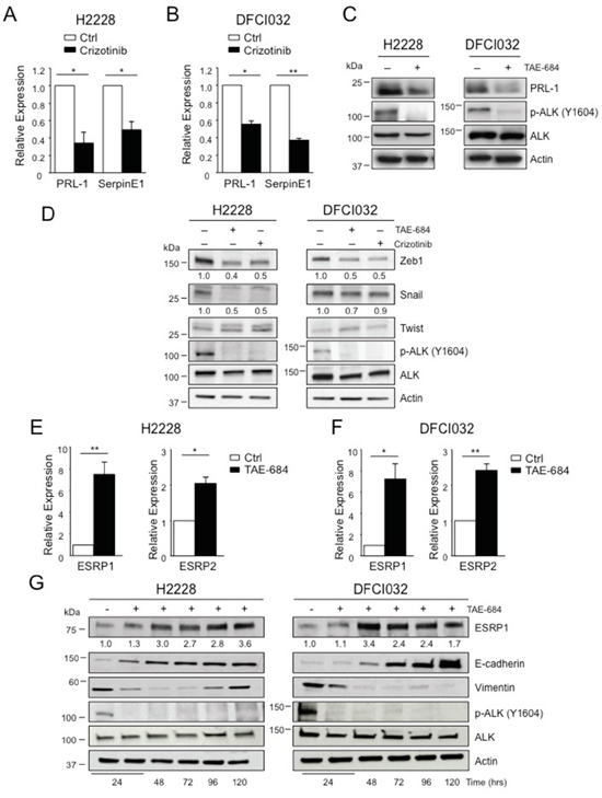 EML4-ALK regulates ESRP1 and ESRP2.
