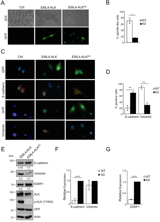EML4-ALK ectopic expression in immortalized bronchial epithelial cells induces a mesenchymal phenotype.