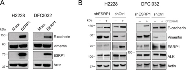 EML4-ALK regulates E-cadherin expression through ESRP1 repression.