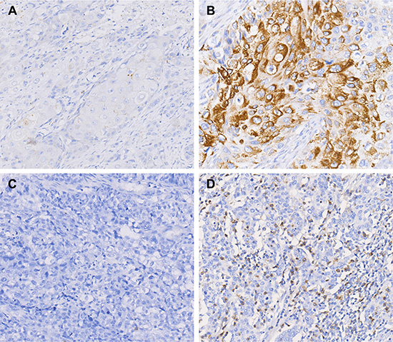PD-1 and PD-L1 expression in ESCC by immunohistochemistry staining.