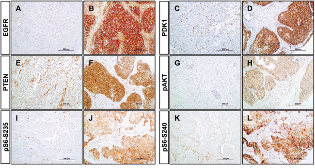 Immunohistochemical analysis of PI3K pathway proteins in HNSCC tissue specimens.