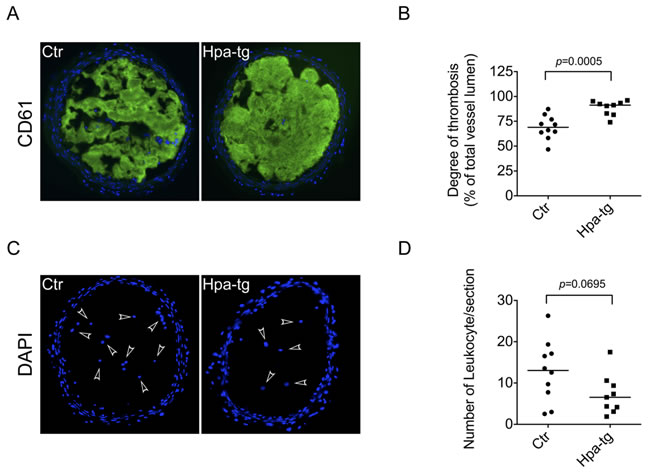 Enhanced thrombosis in carotid arteries of Hpa-tg mice.