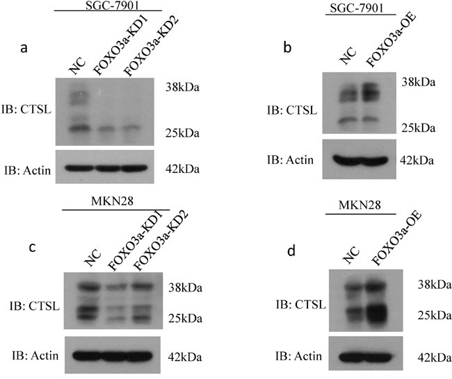 Western blot assay of cathepsin L expression in FOXO3a knockdown or overexpressing gastric cancer cells.