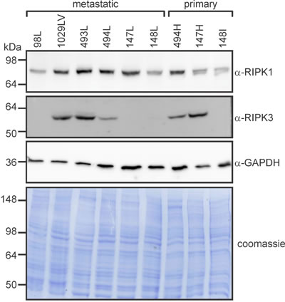 RIPK1 and RIPK3 levels vary between primary and metastatic murine osteosarcomas.