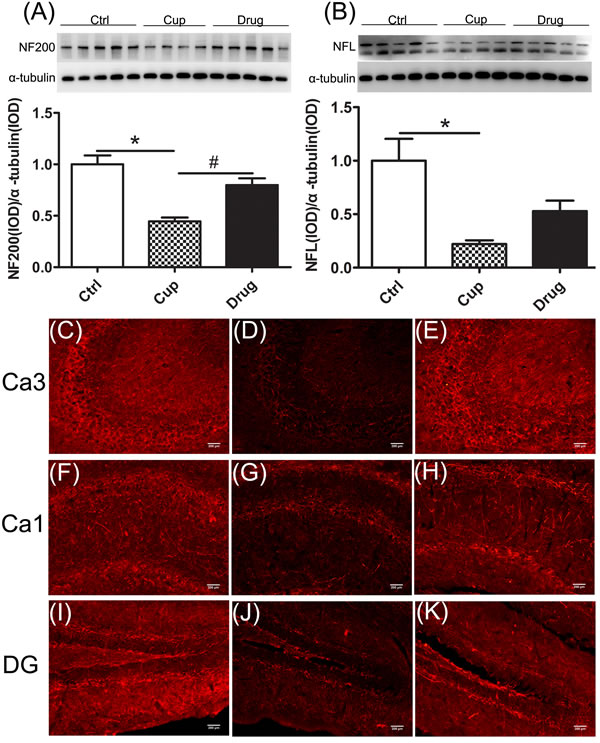 Reduction of axonal structure proteins in the hippocampus.