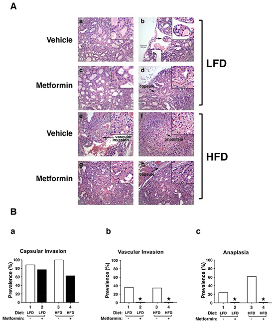 Effects of metformin on thyroid cancer progression of LFD- or HFD- ThrbPV/PV Pten+/−mice.