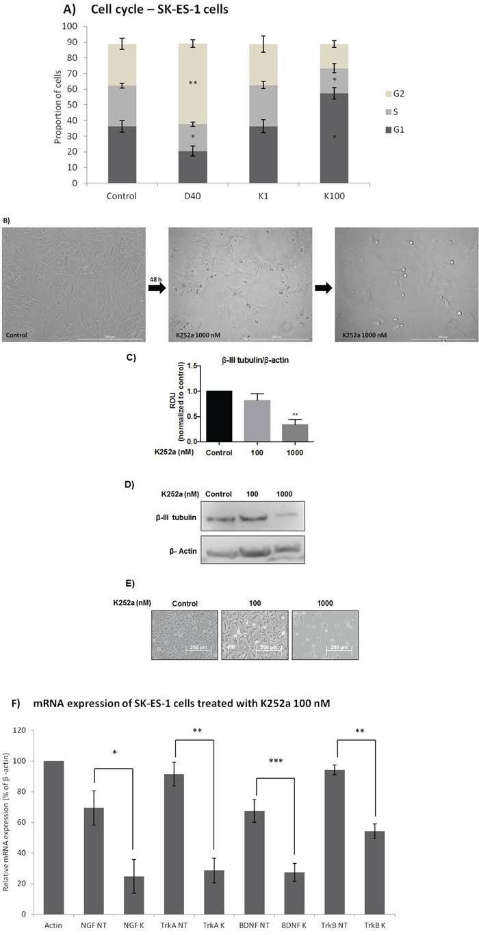Analyses of cell cycle, morphological changes, neuronal differentiation, and mRNA expression of cells treated with K252a.