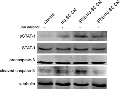 Involvement of Jak-Stat pathway in IFNβ-hUCMSCs conditioned medium induced apoptosis.