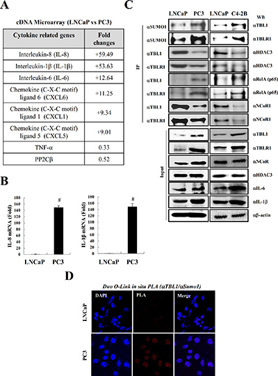 SUMOylation of TBL1 and TBLR1 is strongly elevated in androgen-independent prostate cancer cells enriched with inflammatory cytokines.