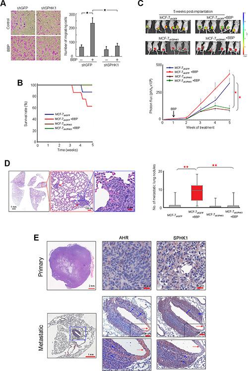 Promotion of SPHK1 during breast tumorigenesis and metastasis.