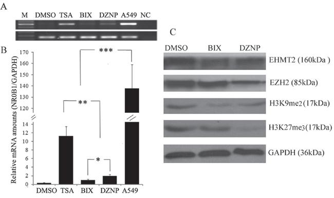 Effect of histone demethylation on NR0B1 expression.