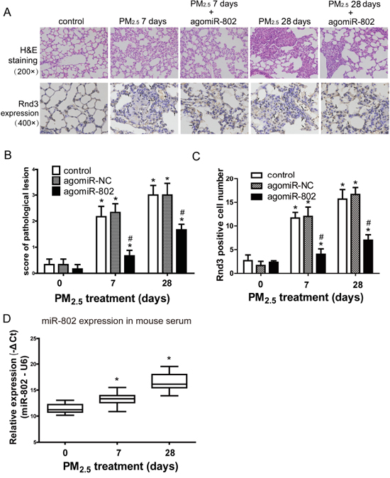 Patholigical lesions and Rnd3 expression in the lungs of mice after PM2.5 exposure.