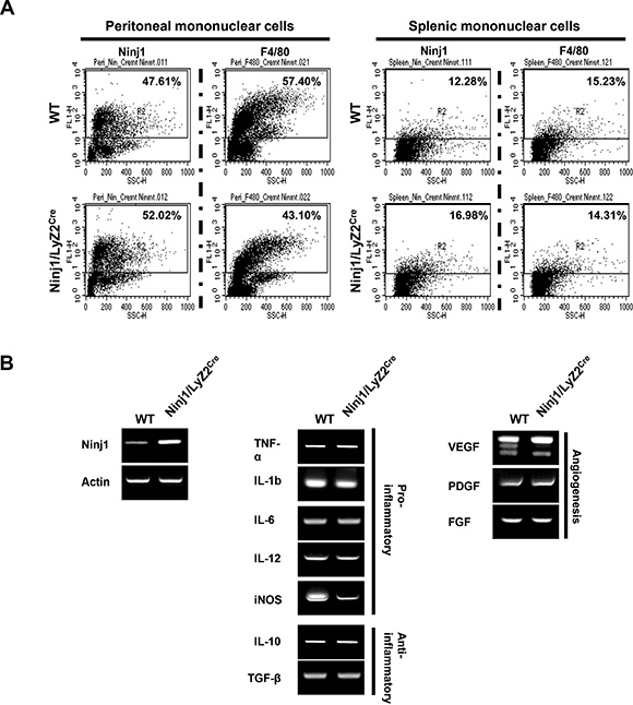 Characteristics of ninjurin 1-overexpressing macrophages.