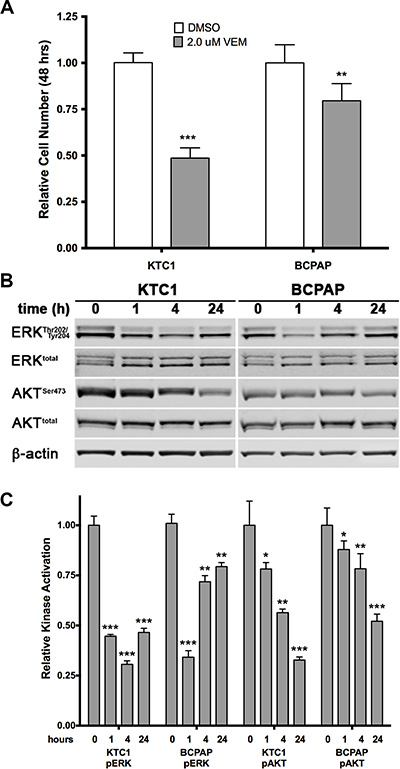 Effects of acute treatment with the BRAF V600E inhibitor vemurafenib on two PTC cell lines.