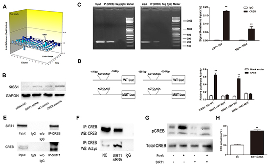 SIRT1 regulates KISS1 expression through deacetylation of transcription factor CREB.