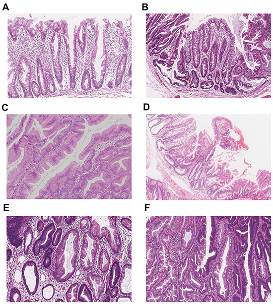 Representative histopathological images of the major serrated lesion subtypes.