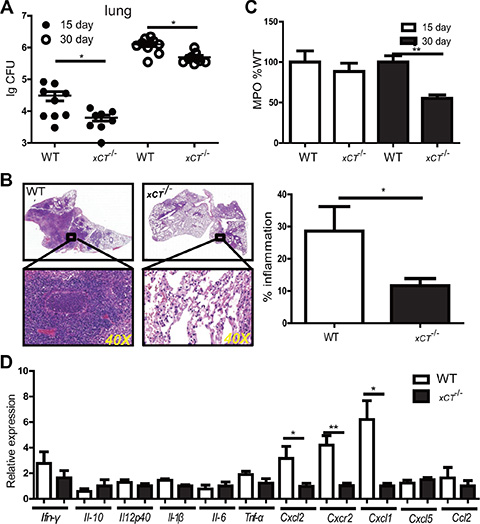 Disruption of xCT renders mice resistant to TB.